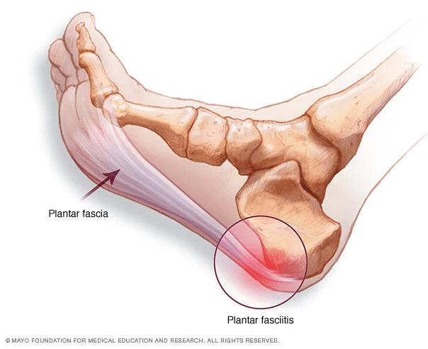 へバーデン結節・足底腱膜炎