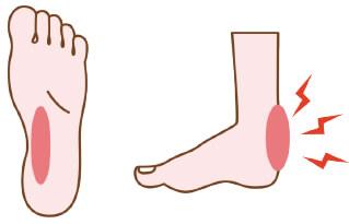 性 関節炎 乾癬
