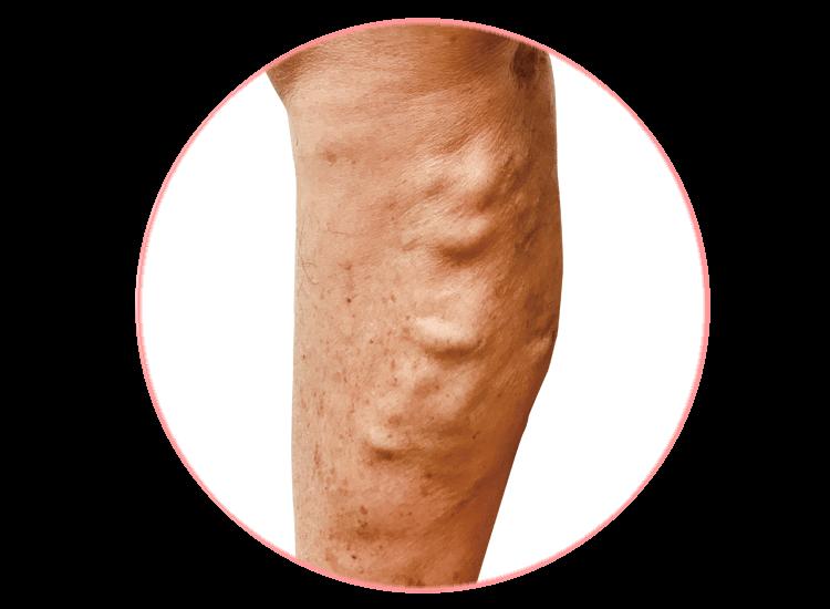 宮田整形外科 下肢静脈瘤